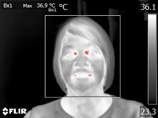 Fever Screening with FLIR Thermal Imaging Cameras